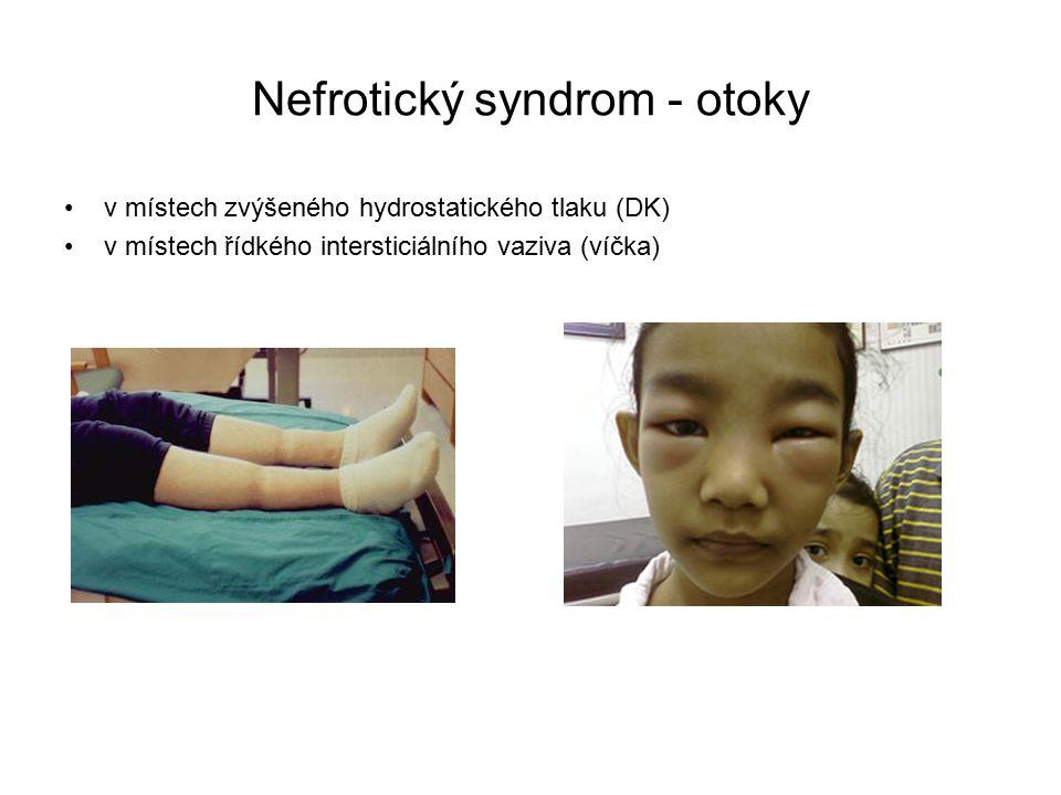 Nefrotický syndrom - otoky v místech zvýšeného hydrostatického tlaku (DK) v místech řídkého intersticiálního vaziva (víčka)