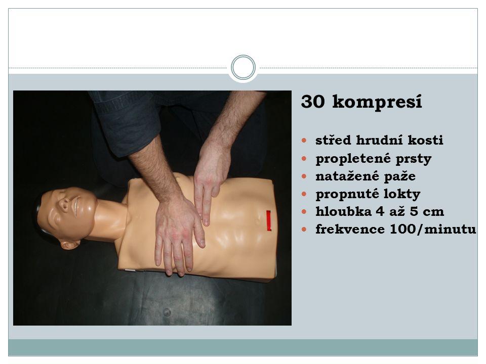 30 kompresí střed hrudní kosti propletené prsty natažené paže propnuté lokty hloubka 4 až 5 cm frekvence 100/minutu