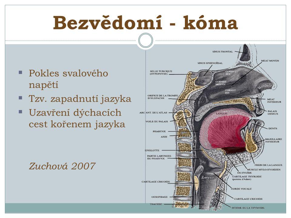 Bezvědomí - kóma  Pokles svalového napětí  Tzv.