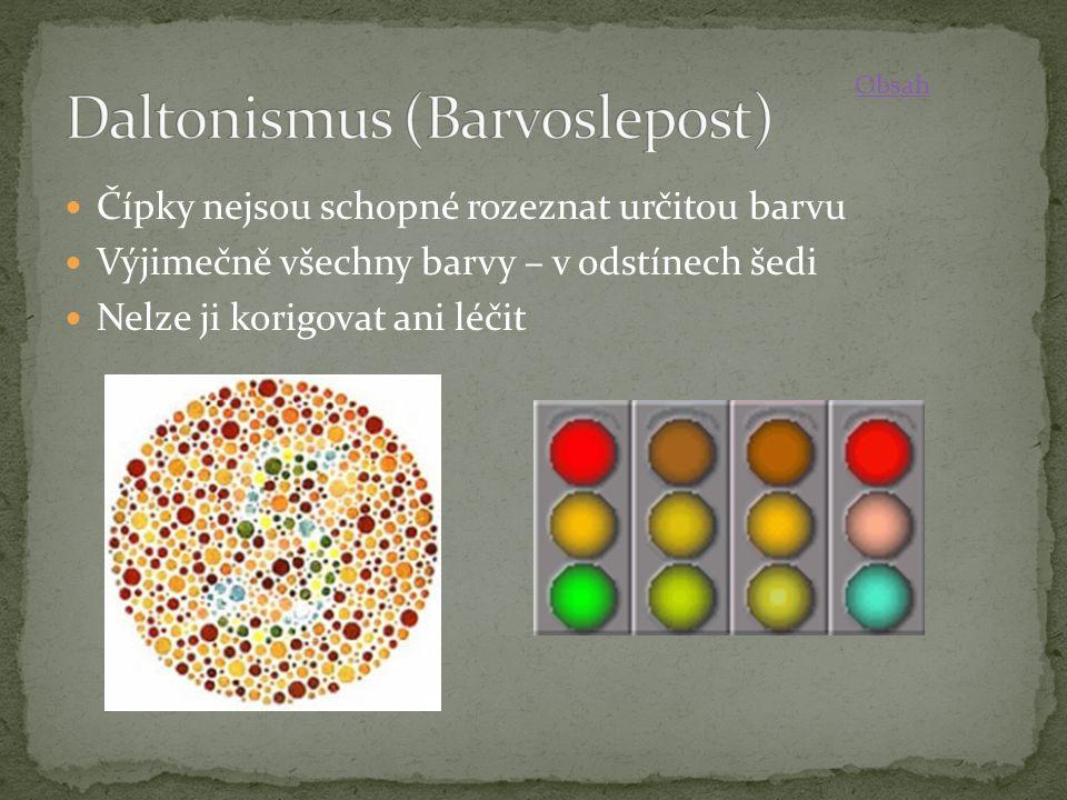 Čípky nejsou schopné rozeznat určitou barvu Výjimečně všechny barvy – v odstínech šedi Nelze ji korigovat ani léčit Obsah