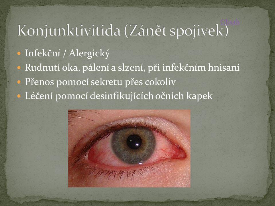 Infekční / Alergický Rudnutí oka, pálení a slzení, při infekčním hnisaní Přenos pomocí sekretu přes cokoliv Léčení pomocí desinfikujících očních kapek Obsah