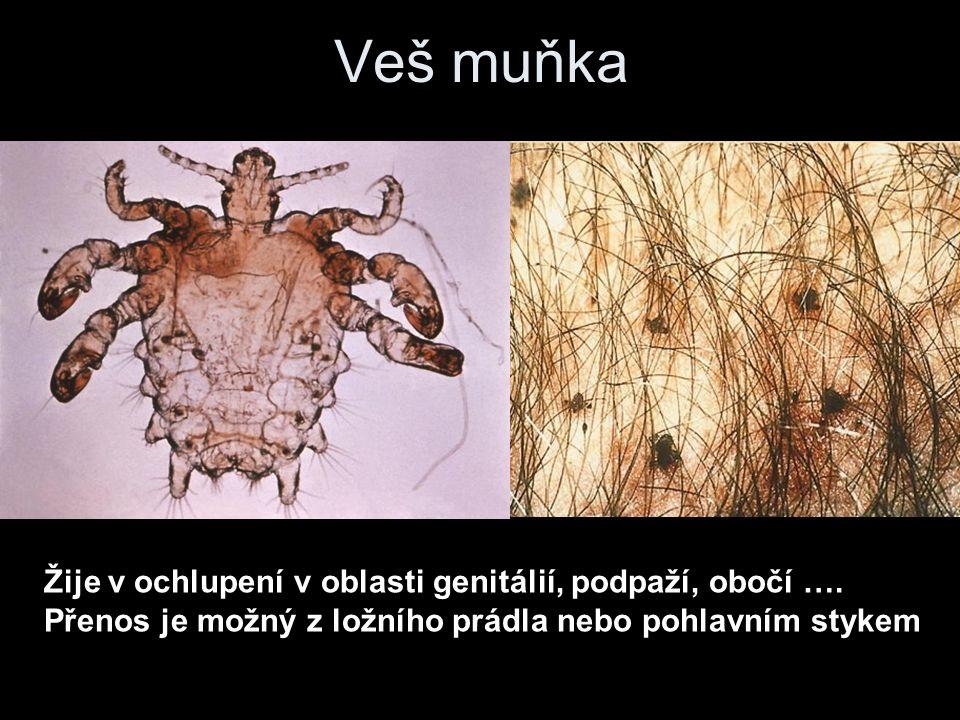 Veš muňka Žije v ochlupení v oblasti genitálií, podpaží, obočí ….
