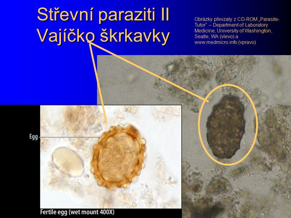 Škrkavka dětská – Ascaris lumbricoides Po roupovi druhou nejběžnější hlísticí je škrkavka dětská – Ascaris lumbricoides. Samička je dlouhá 20 – 35 cm,