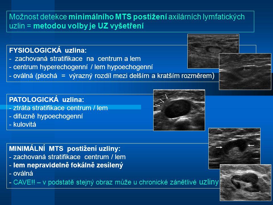 Možnost detekce minimálního MTS postižení axilárních lymfatických uzlin = metodou volby je UZ vyšetření FYSIOLOGICKÁ uzlina: - zachovaná stratifikace na centrum a lem - centrum hyperechogenní / lem hypoechogenní - oválná (plochá = výrazný rozdíl mezi delším a kratším rozměrem ) PATOLOGICKÁ uzlina: - ztráta stratifikace centrum / lem - difuzně hypoechogenní - kulovitá MINIMÁLNÍ MTS postižení uzliny: - zachovaná stratifikace centrum / lem - lem nepravidelně fokálně zesílený - oválná - CAVE!.