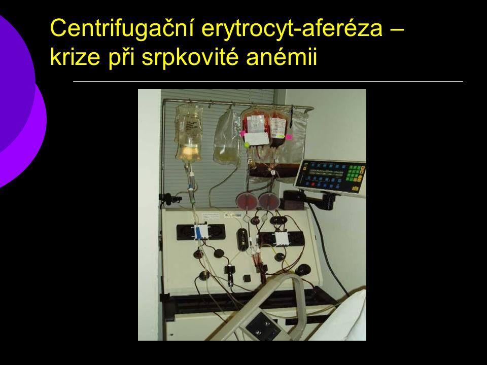 Centrifugační erytrocyt-aferéza – krize při srpkovité anémii