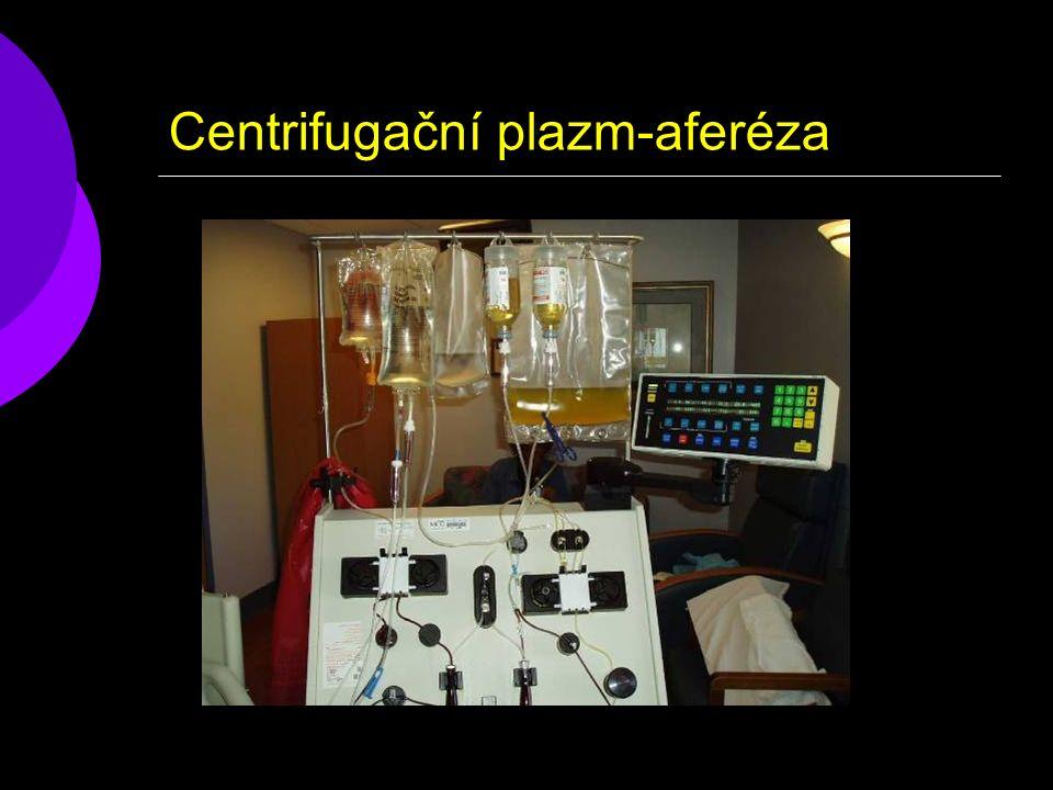 Centrifugační plazm-aferéza