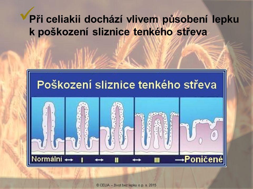 Při celiakii dochází vlivem působení lepku k poškození sliznice tenkého střeva © CELIA – život bez lepku o.p. s. 2015