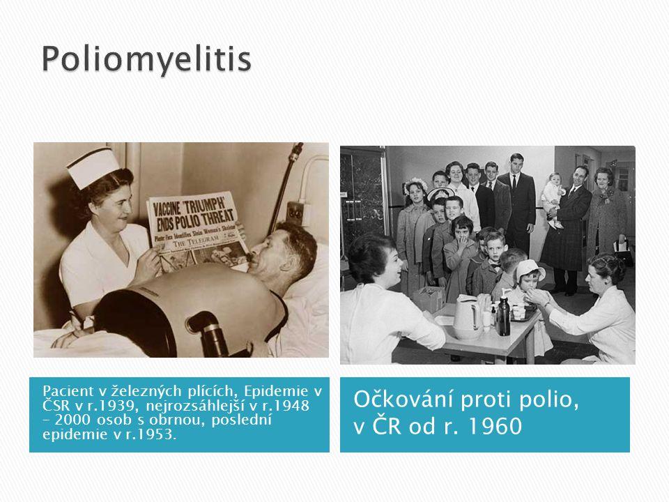 Pacient s poliomyelitis v železných plicích Archiv Infekce Bulovka