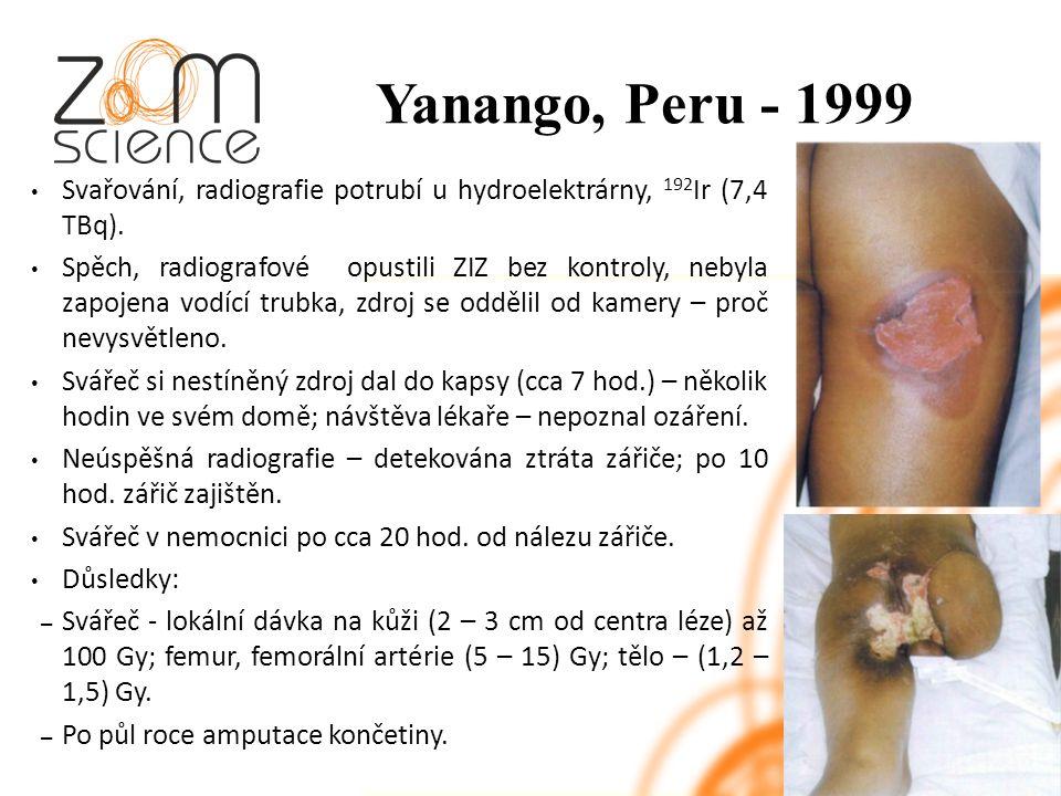 Yanango, Peru - 1999 Svařování, radiografie potrubí u hydroelektrárny, 192 Ir (7,4 TBq).