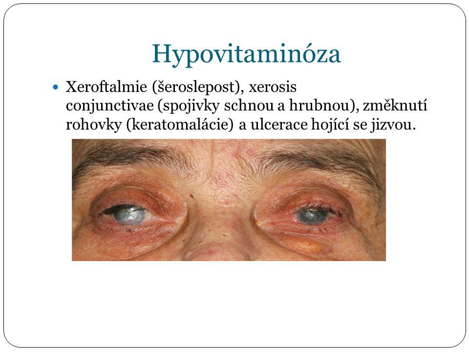 Hypovitaminóza Xeroftalmie (šeroslepost), xerosis conjunctivae (spojivky schnou a hrubnou), změknutí rohovky (keratomalácie) a ulcerace hojící se jizvou.