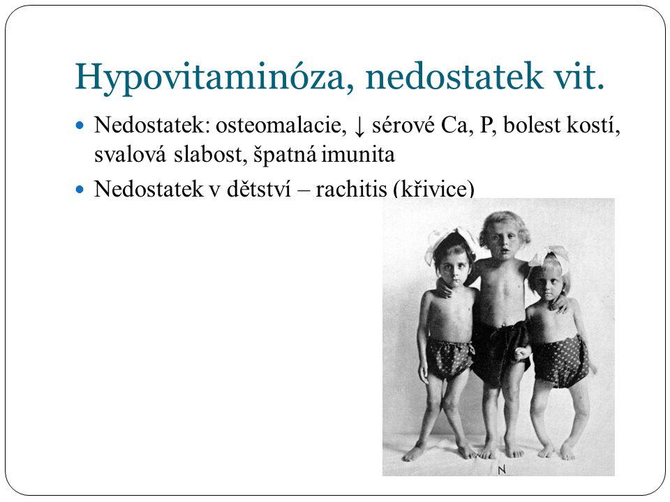 Hypovitaminóza, nedostatek vit. Nedostatek: osteomalacie, ↓ sérové Ca, P, bolest kostí, svalová slabost, špatná imunita Nedostatek v dětství – rachiti