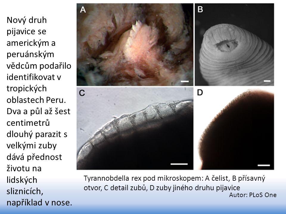 Tyrannobdella rex pod mikroskopem: A čelist, B přísavný otvor, C detail zubů, D zuby jiného druhu pijavice Autor: PLoS One Nový druh pijavice se ameri