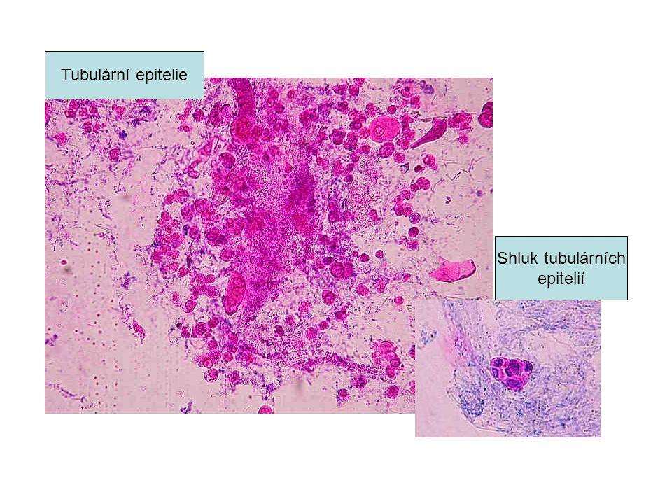 Tubulární epitelie Shluk tubulárních epitelií