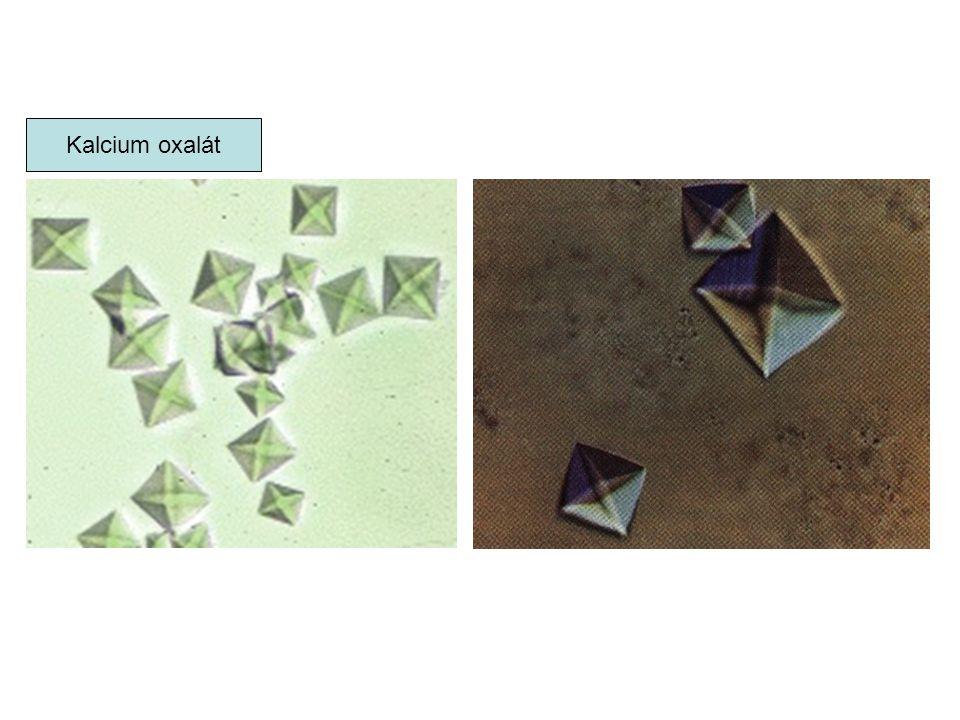 Kalcium oxalát