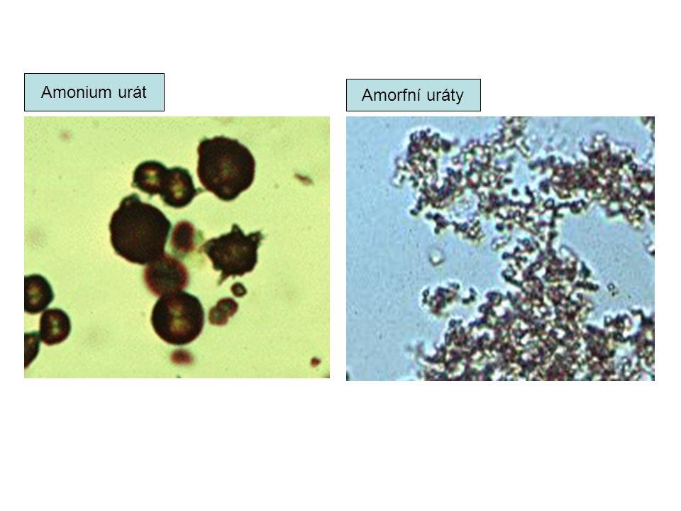 Amonium urát Amorfní uráty