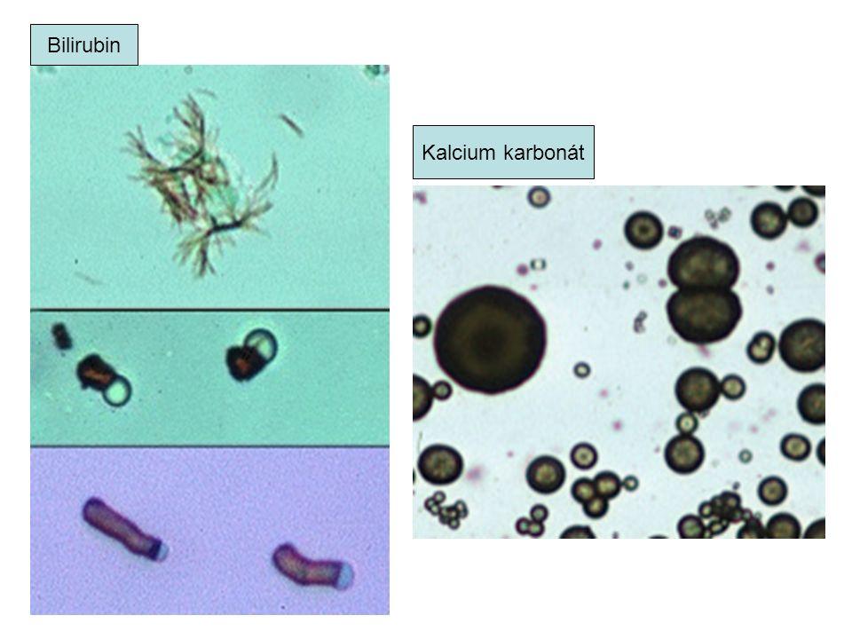 Bilirubin Kalcium karbonát