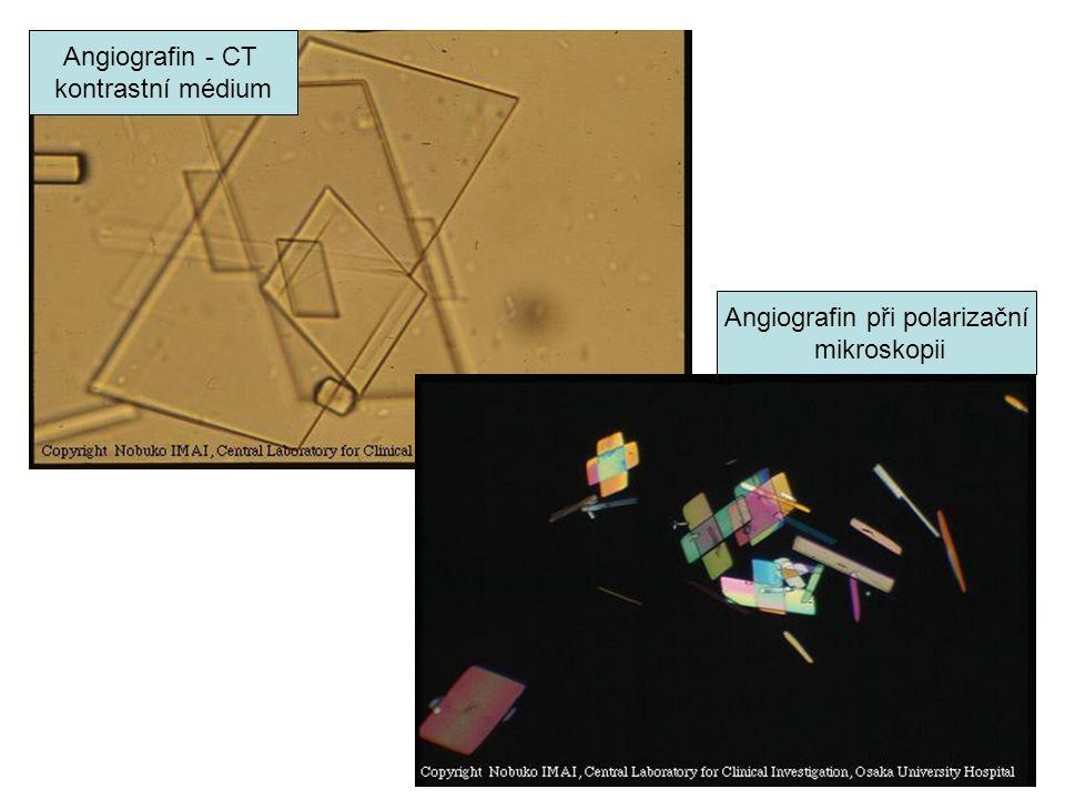 Angiografin - CT kontrastní médium Angiografin při polarizační mikroskopii