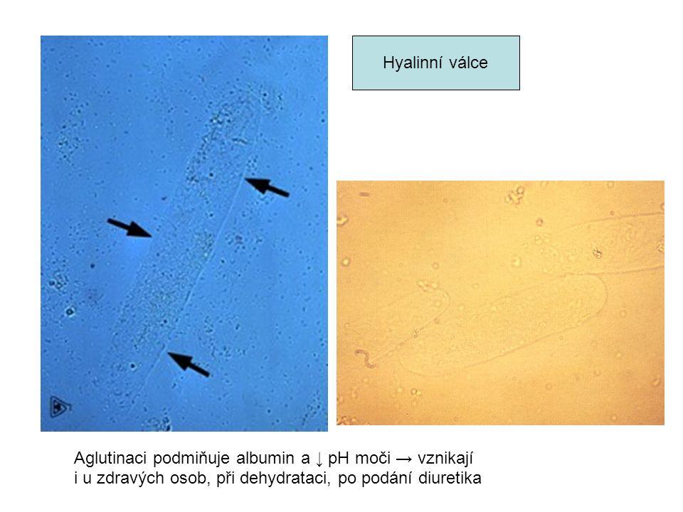 Hyalinní válce Aglutinaci podmiňuje albumin a ↓ pH moči → vznikají i u zdravých osob, při dehydrataci, po podání diuretika