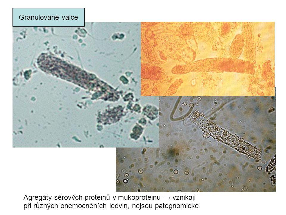 Granulované válce Agregáty sérových proteinů v mukoproteinu → vznikají při různých onemocněních ledvin, nejsou patognomické
