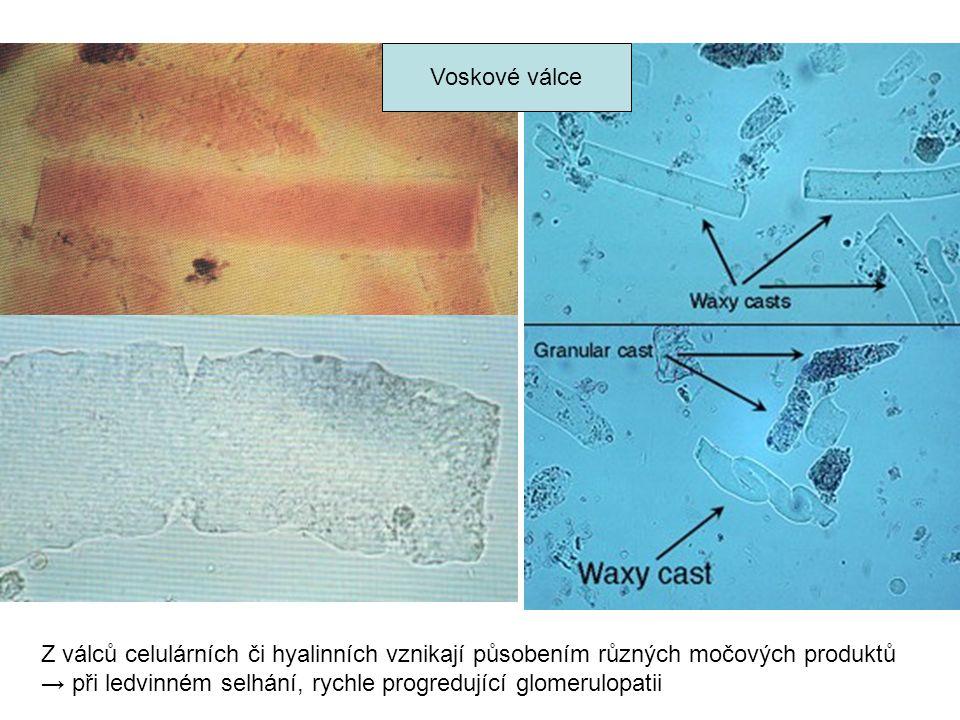 Voskové válce Z válců celulárních či hyalinních vznikají působením různých močových produktů → při ledvinném selhání, rychle progredující glomerulopatii