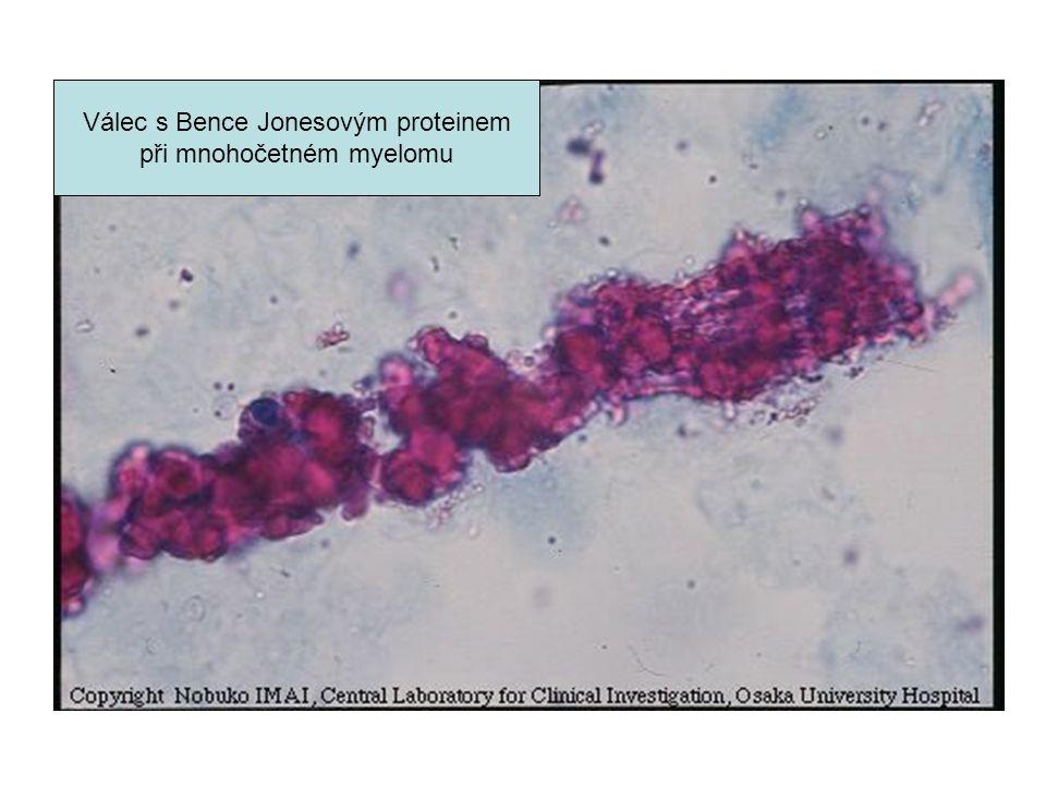 Válec s Bence Jonesovým proteinem při mnohočetném myelomu
