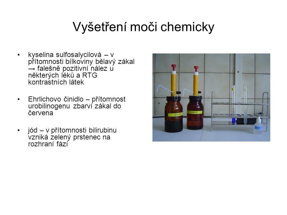 Vyšetření moči chemicky kyselina sulfosalycilová – v přítomnosti bílkoviny bělavý zákal → falešně pozitivní nález u některých léků a RTG kontrastních látek Ehrlichovo činidlo – přítomnost urobilinogenu zbarví zákal do červena jód – v přítomnosti bilirubinu vzniká zelený prstenec na rozhraní fází