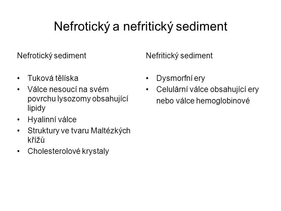 Nefrotický a nefritický sediment Nefrotický sediment Tuková tělíska Válce nesoucí na svém povrchu lysozomy obsahující lipidy Hyalinní válce Struktury
