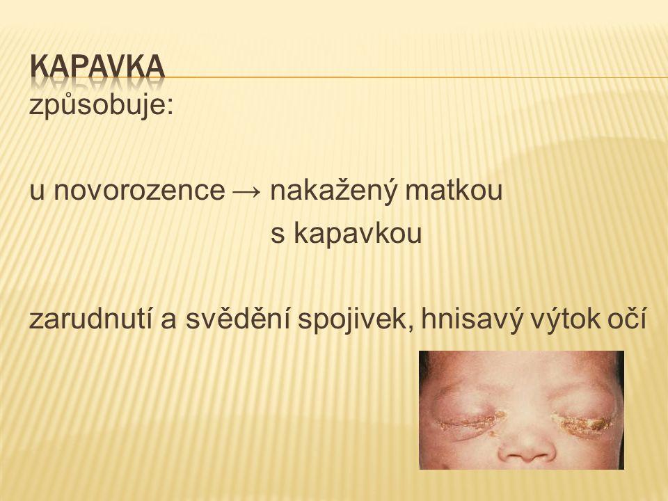 způsobuje: u novorozence → nakažený matkou s kapavkou zarudnutí a svědění spojivek, hnisavý výtok očí