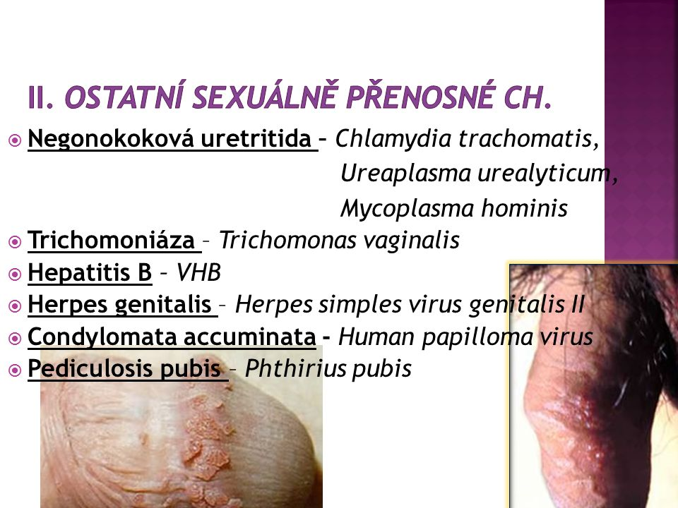  RIMC - při neg.kultivacích  Uretritida ml. mužů primárně  Epididymitida ml.