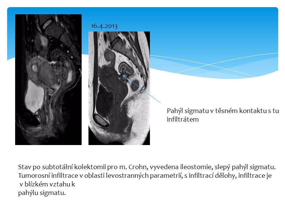 STIR Stav po subtotální kolektomii pro m. Crohn, vyvedena ileostomie, slepý pahýl sigmatu.