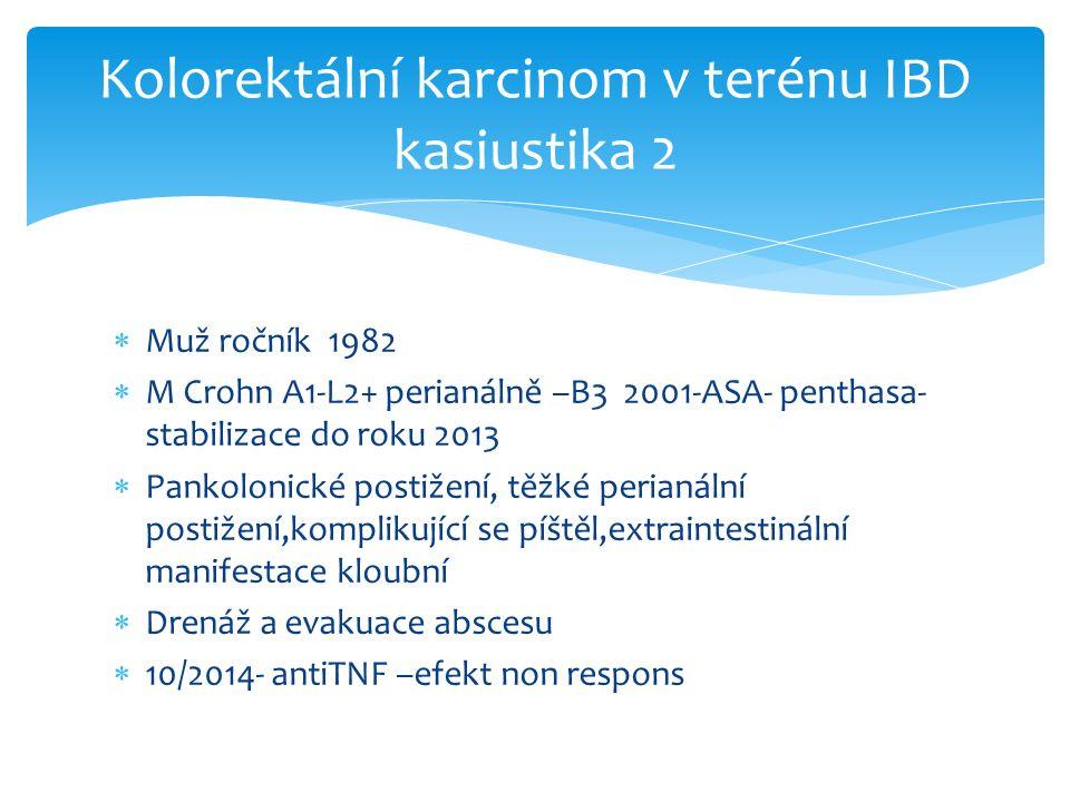  Muž ročník 1982  M Crohn A1-L2+ perianálně –B3 2001-ASA- penthasa- stabilizace do roku 2013  Pankolonické postižení, těžké perianální postižení,komplikující se píštěl,extraintestinální manifestace kloubní  Drenáž a evakuace abscesu  10/2014- antiTNF –efekt non respons Kolorektální karcinom v terénu IBD kasiustika 2