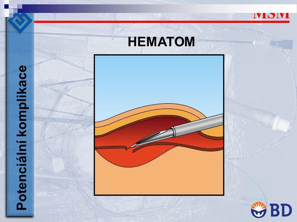 HEMATOM Potenciální komplikace