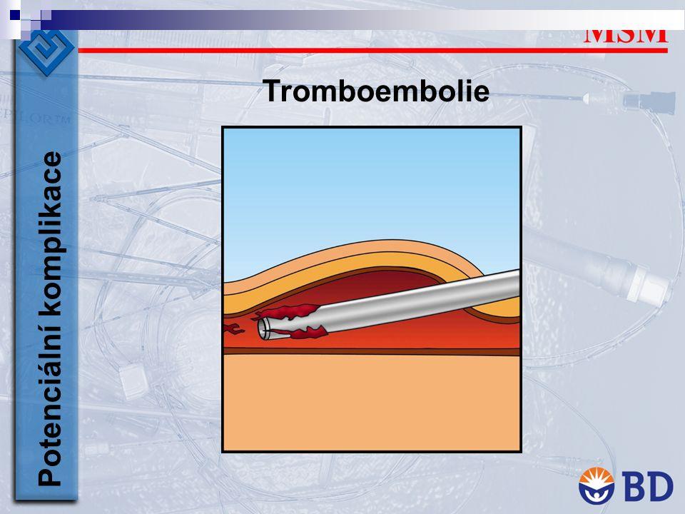 Tromboembolie Potenciální komplikace