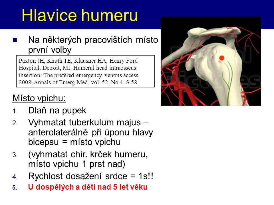 Hlavice humeru Hlavice humeru Na některých pracovištích místo první volby Místo vpichu: 1. Dlaň na pupek 2. Vyhmatat tuberkulum majus – anterolateráln