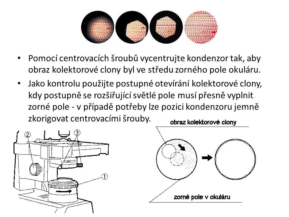 Pomocí centrovacích šroubů vycentrujte kondenzor tak, aby obraz kolektorové clony byl ve středu zorného pole okuláru. Jako kontrolu použijte postupné