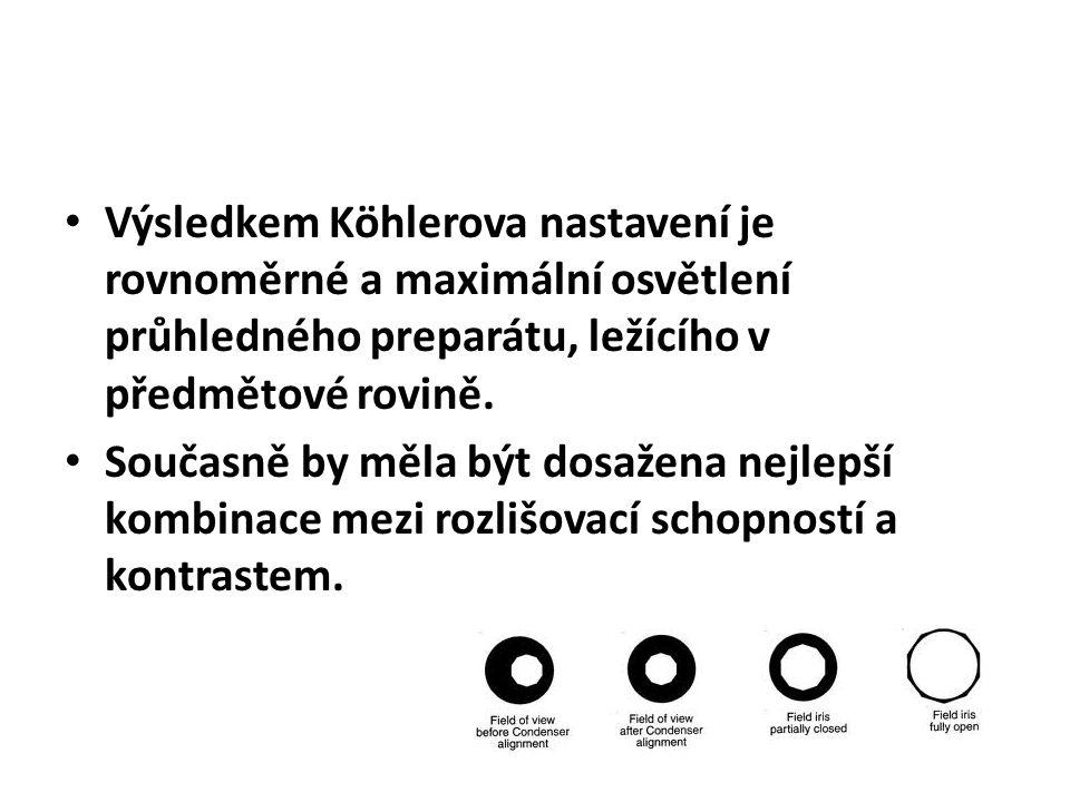 Výsledkem Köhlerova nastavení je rovnoměrné a maximální osvětlení průhledného preparátu, ležícího v předmětové rovině. Současně by měla být dosažena n