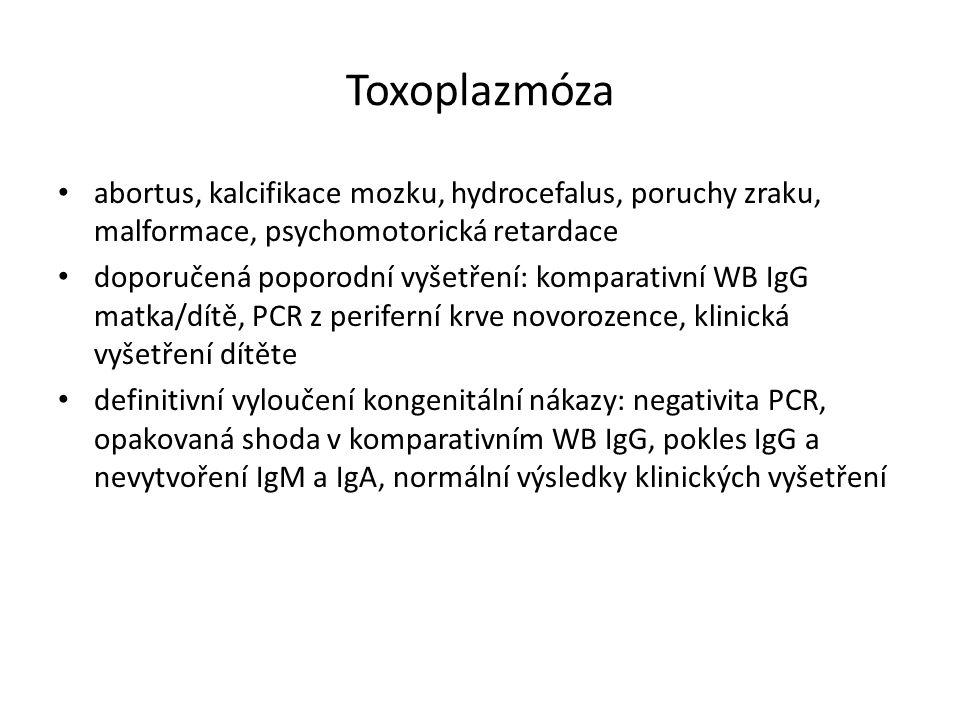 Toxoplazmóza abortus, kalcifikace mozku, hydrocefalus, poruchy zraku, malformace, psychomotorická retardace doporučená poporodní vyšetření: komparativ