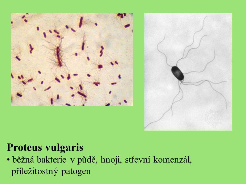 Proteus vulgaris běžná bakterie v půdě, hnoji, střevní komenzál, příležitostný patogen