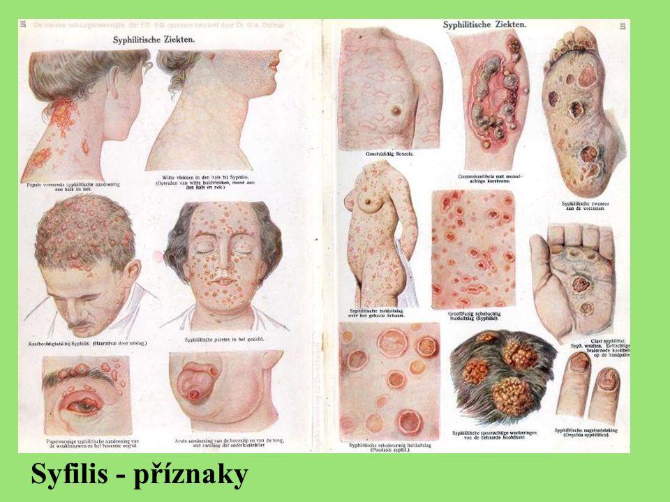Syfilis - příznaky