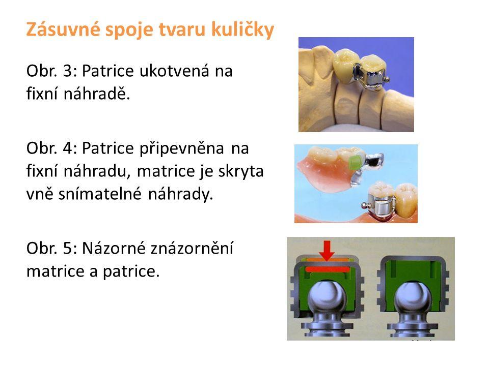 Zásuvné spoje tvaru kuličky Obr. 3: Patrice ukotvená na fixní náhradě.