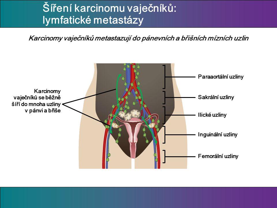 Šíření karcinomu vaječníků: lymfatické metastázy Karcinomy vaječníků metastazují do pánevních a břišních mízních uzlin Paraaortální uzliny Sakrální uzliny Ilické uzliny Inguinální uzliny Femorální uzliny Karcinomy vaječníků se běžně šíří do mnoha uzliny v pánvi a břiše