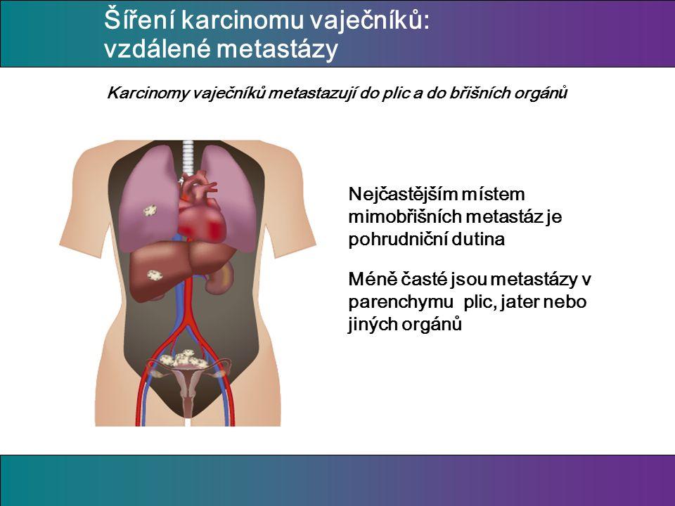 Šíření karcinomu vaječníků: vzdálené metastázy Nejčastějším místem mimobřišních metastáz je pohrudniční dutina Méně časté jsou metastázy v parenchymu plic, jater nebo jiných orgánů Karcinomy vaječníků metastazují do plic a do břišních orgán ů