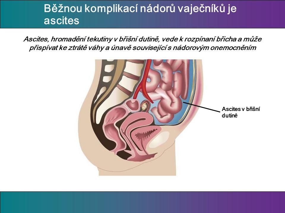 Běžnou komplikací nádorů vaječníků je ascites Ascites, hromadění tekutiny v břišní dutině, vede k rozpínaní břicha a může přispívat ke ztrátě váhy a únavě související s nádorovým onemocněním Ascites v břišní dutin ě