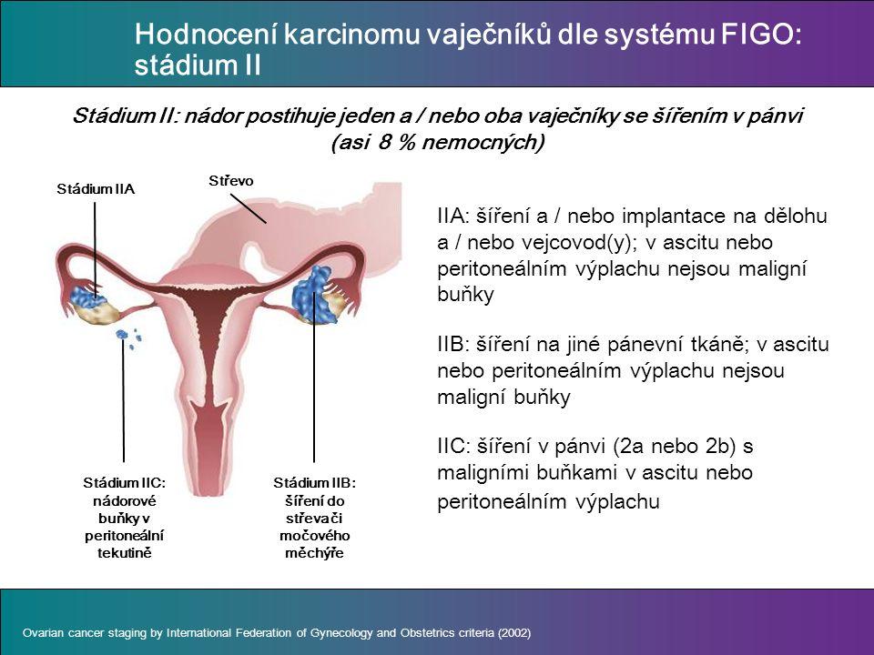 IIA: šíření a / nebo implantace na dělohu a / nebo vejcovod(y); v ascitu nebo peritoneálním výplachu nejsou maligní buňky IIB: šíření na jiné pánevní tkáně; v ascitu nebo peritoneálním výplachu nejsou maligní buňky IIC: šíření v pánvi (2a nebo 2b) s maligními buňkami v ascitu nebo peritoneálním výplachu Stádium II: nádor postihuje jeden a / nebo oba vaječníky se šířením v pánvi (asi 8 % nemocných) Ovarian cancer staging by International Federation of Gynecology and Obstetrics criteria (2002) Stádium IIC: nádorové buňky v peritoneální tekutině Stádium IIB: šíření do střeva či močového měchýře Stádium IIA Střevo Hodnocení karcinomu vaječníků dle systému FIGO: stádium II