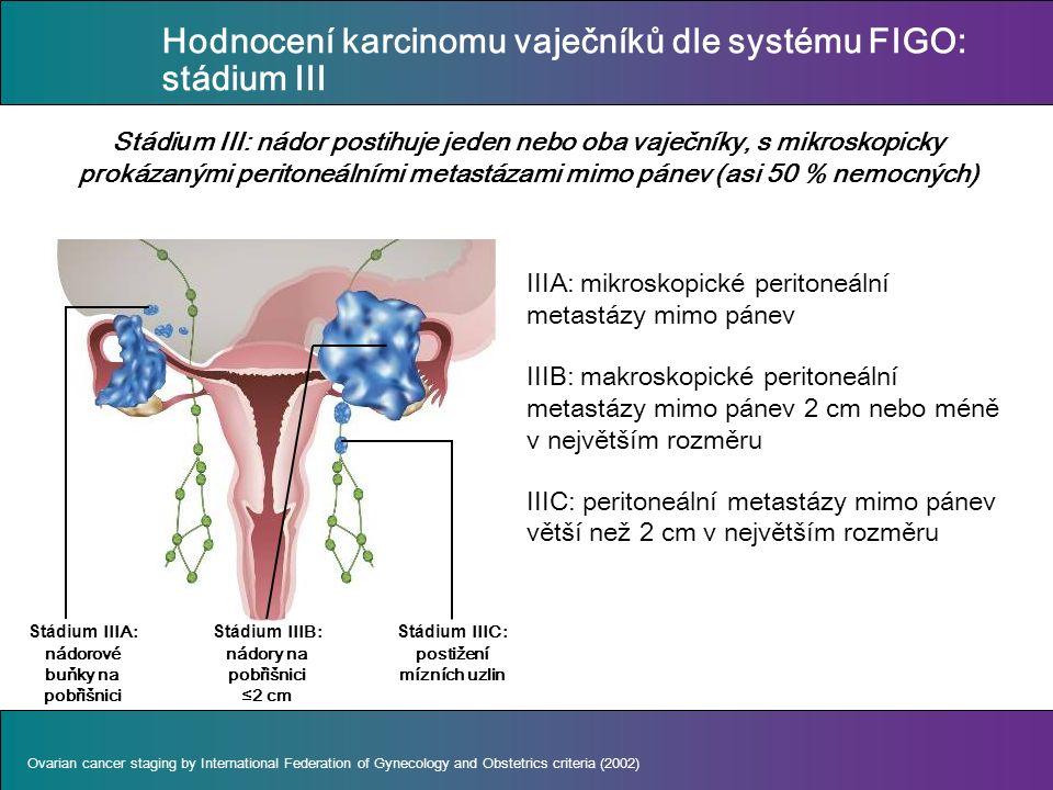 IIIA: mikroskopické peritoneální metastázy mimo pánev IIIB: makroskopické peritoneální metastázy mimo pánev 2 cm nebo méně v největším rozměru IIIC: peritoneální metastázy mimo pánev větší než 2 cm v největším rozměru Stádi u m III: nádor postihuje jeden nebo oba vaječníky, s mikroskopicky prokázanými peritoneálními metastázami mimo pánev (asi 50 % nemocných) Ovarian cancer staging by International Federation of Gynecology and Obstetrics criteria (2002) Stádium IIIA: nádorové buňky na pobřišnici Stádium IIIB: nádory na pobřišnici ≤2 cm Stádium IIIC: postižení mízních uzlin Hodnocení karcinomu vaječníků dle systému FIGO: stádium III