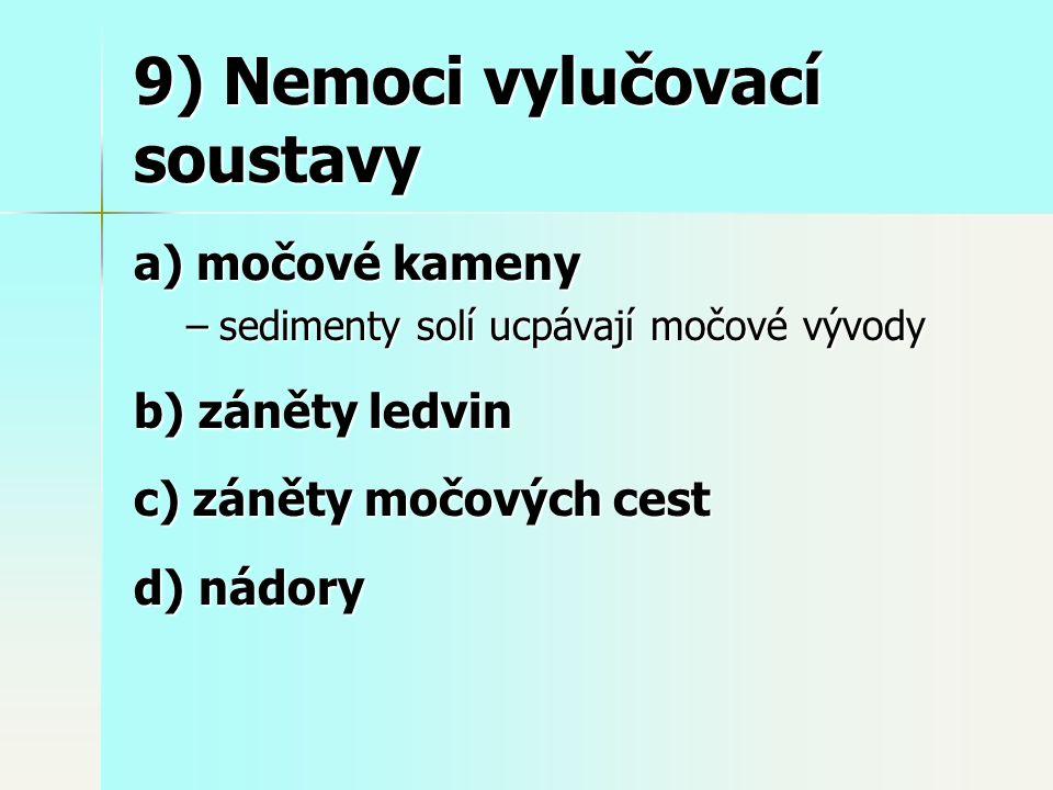 9) Nemoci vylučovací soustavy a) močové kameny –sedimenty solí ucpávají močové vývody b) záněty ledvin c) záněty močových cest d) nádory