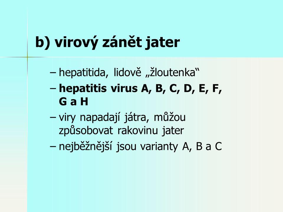"""– –hepatitida, lidově """"žloutenka – –hepatitis virus A, B, C, D, E, F, G a H – –viry napadají játra, můžou způsobovat rakovinu jater – –nejběžnější jsou varianty A, B a C b) virový zánět jater"""