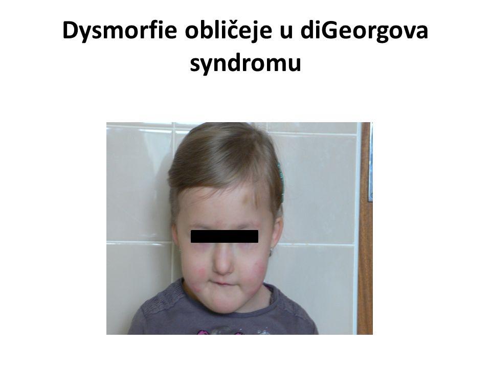 Dysmorfie obličeje u diGeorgova syndromu