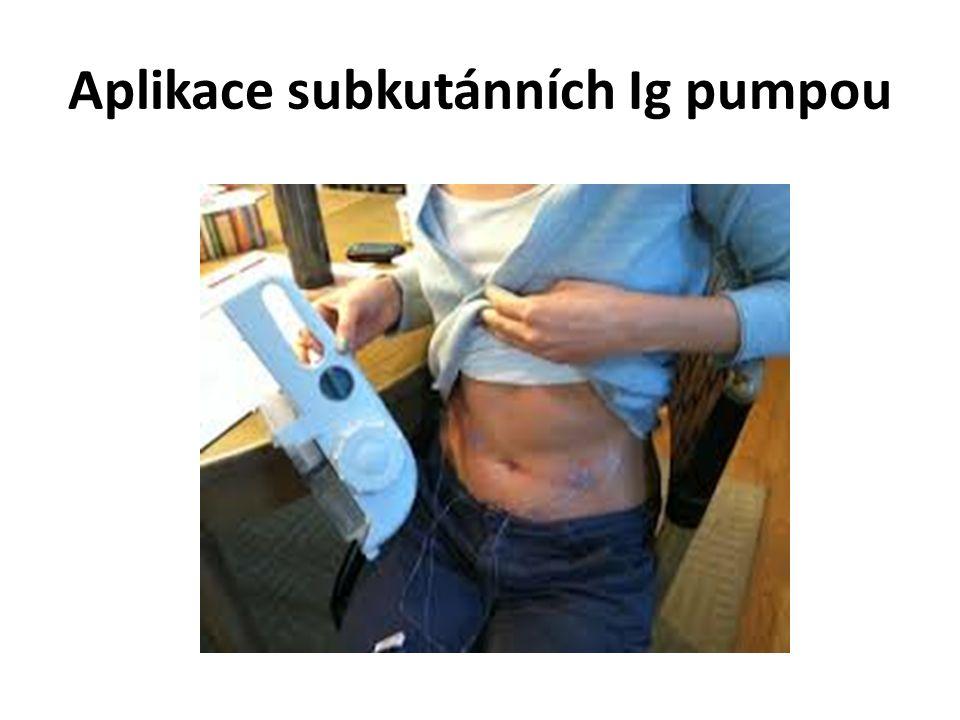 Aplikace subkutánních Ig pumpou