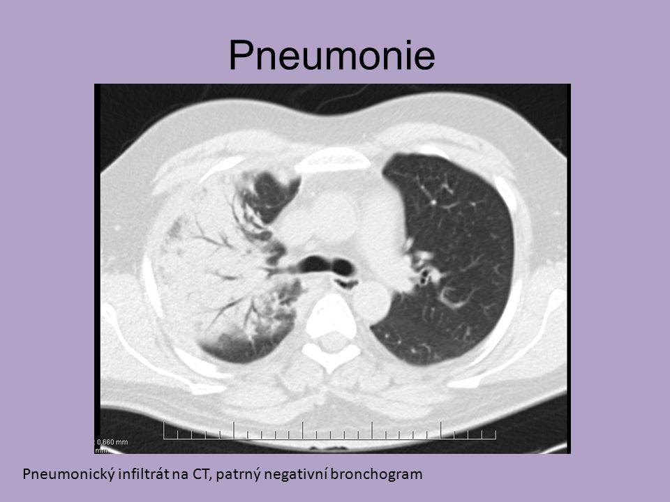 Pneumonie Pneumonický infiltrát na CT, patrný negativní bronchogram